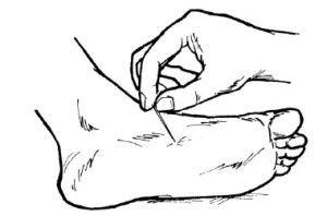 Уколите ногу булавкой