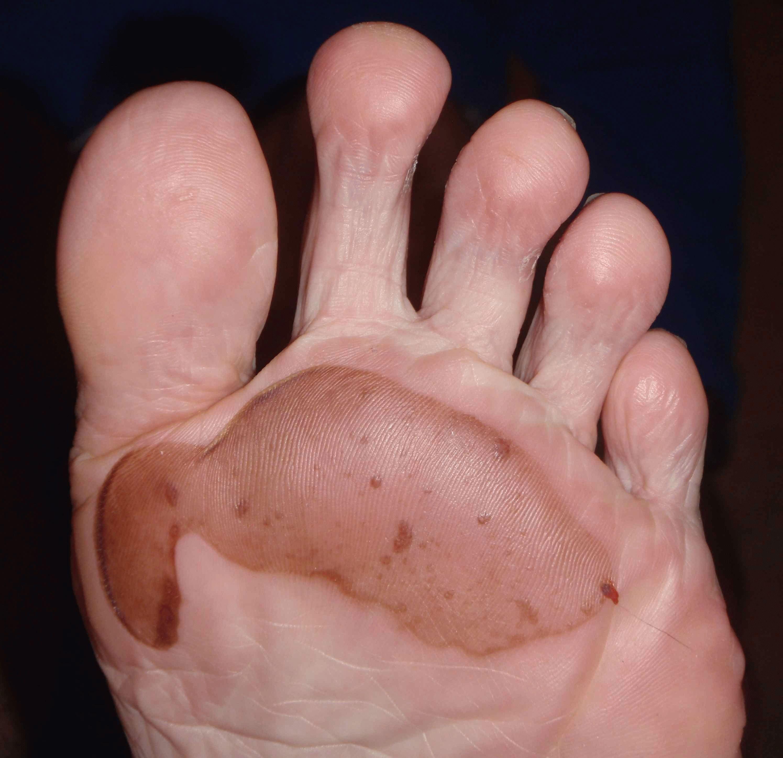 Как лечить водянистую мозоль на ноге на пальце