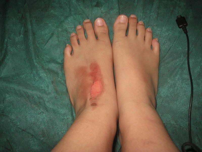 Что делать при ожоге на ноге в домашних условиях