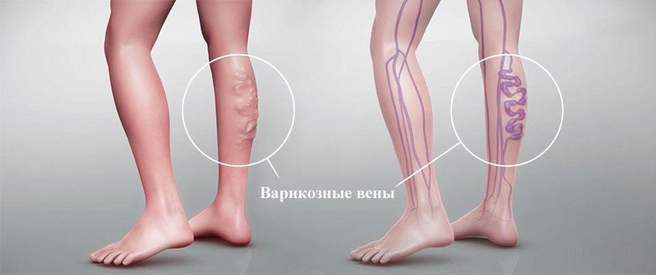 Физиолечение при варикозной болезни нижних конечностей