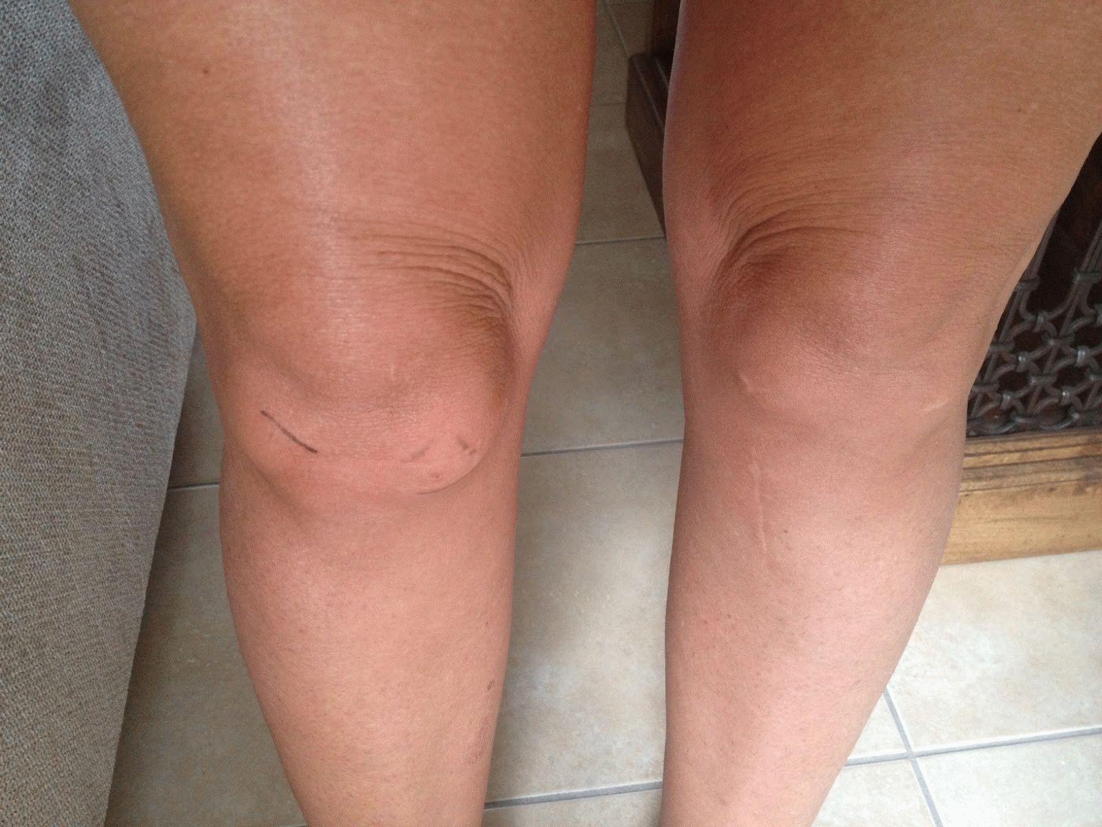 суставы ног опухают причина