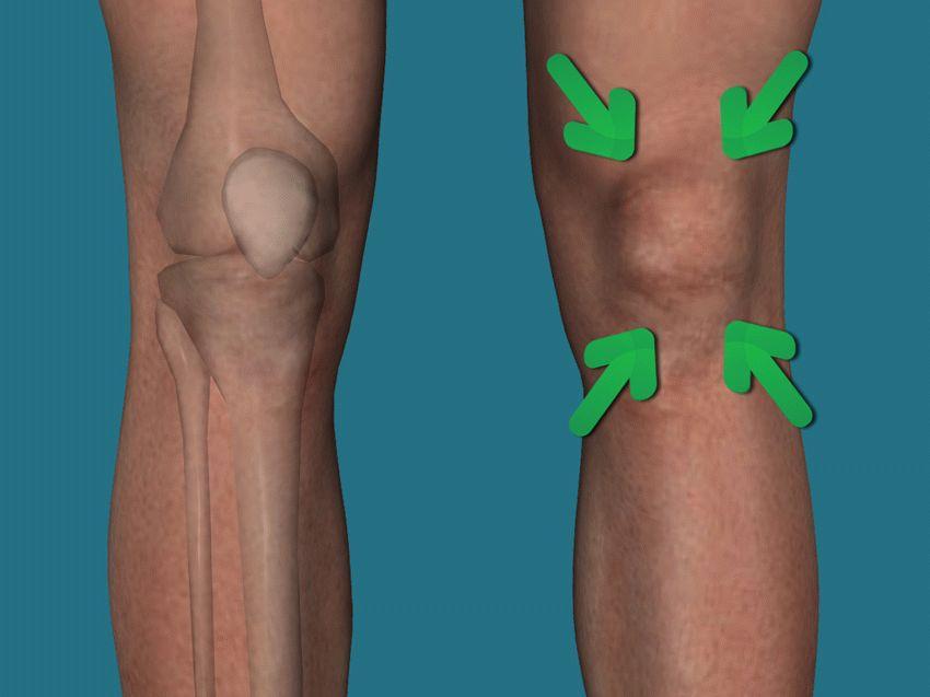 чем лечить коленный сустав опухает и болит как лечить