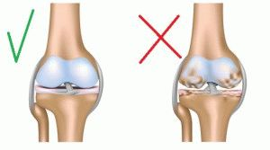 Остеоартрит колена