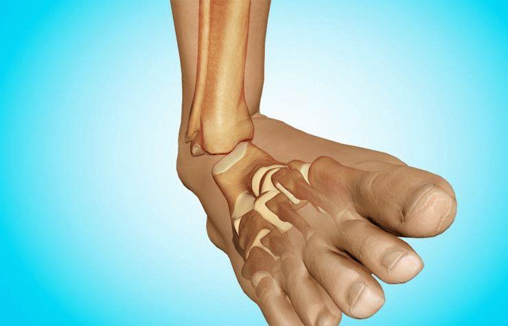 как сделать вывих ноги в домашних условиях