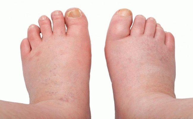Инфеция попала через ранку опухла нога