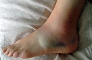 Разрыв связок ноги