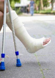 Наложение гипса на ногу