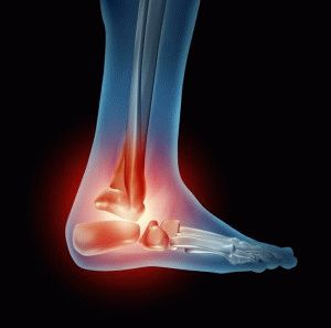 Воспаление суставов ступней
