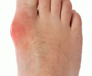 Возможные причины и лечение опухоли ног в разных местах