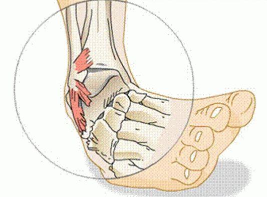 Лечение растяжение ноги в домашних условиях - Реабилитация и восстановление после инсульта в домашних