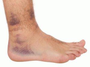 Тромбоз в нижней части ног