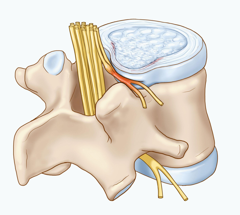 Реабилитация после операции протез тазобедренного сустава