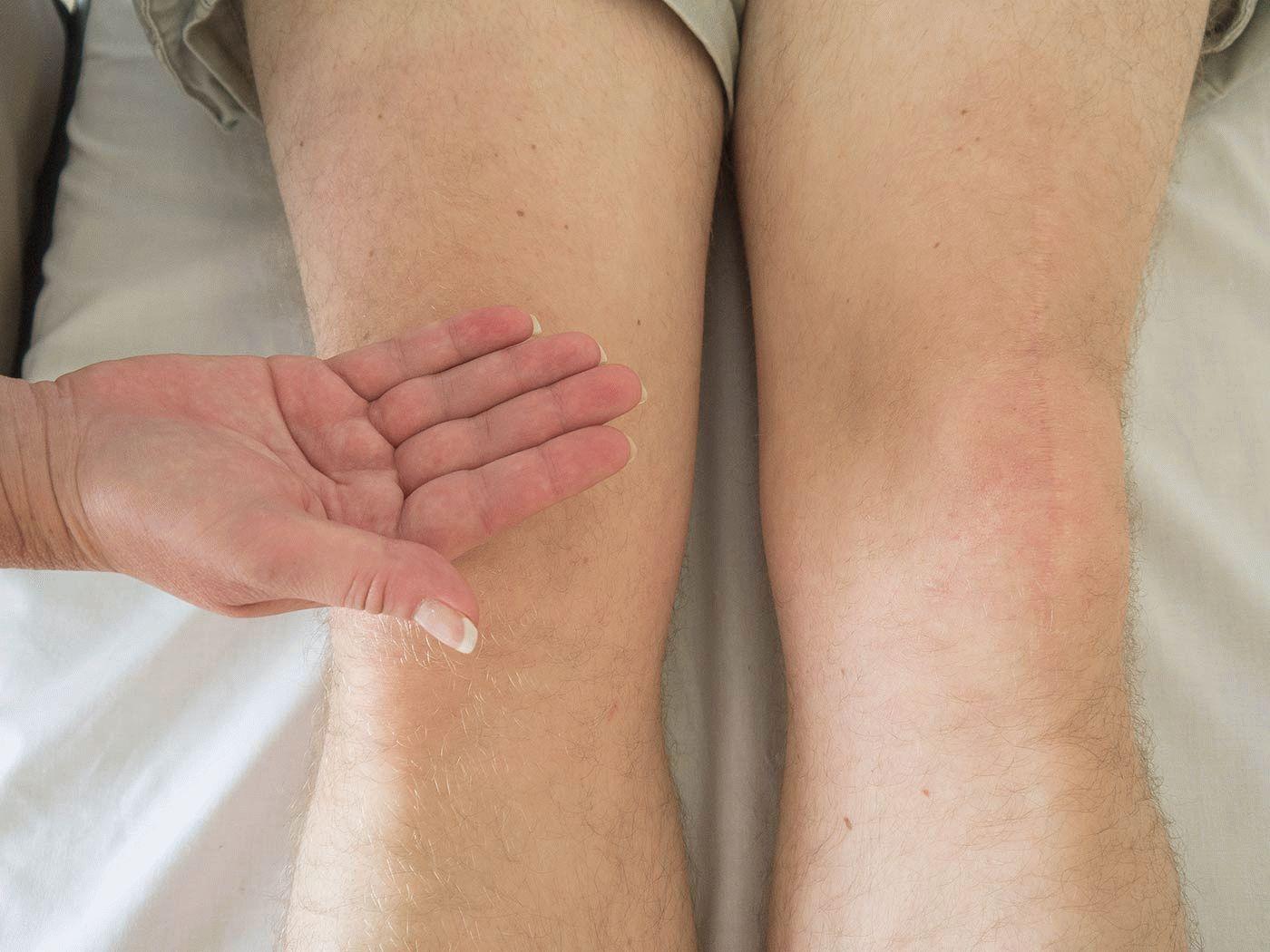 К какому врачу нужно обратиться если болят колени