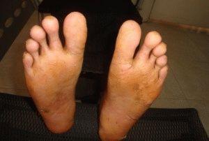 Микоз ног