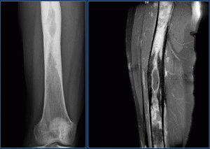 Воспаление кости ноги