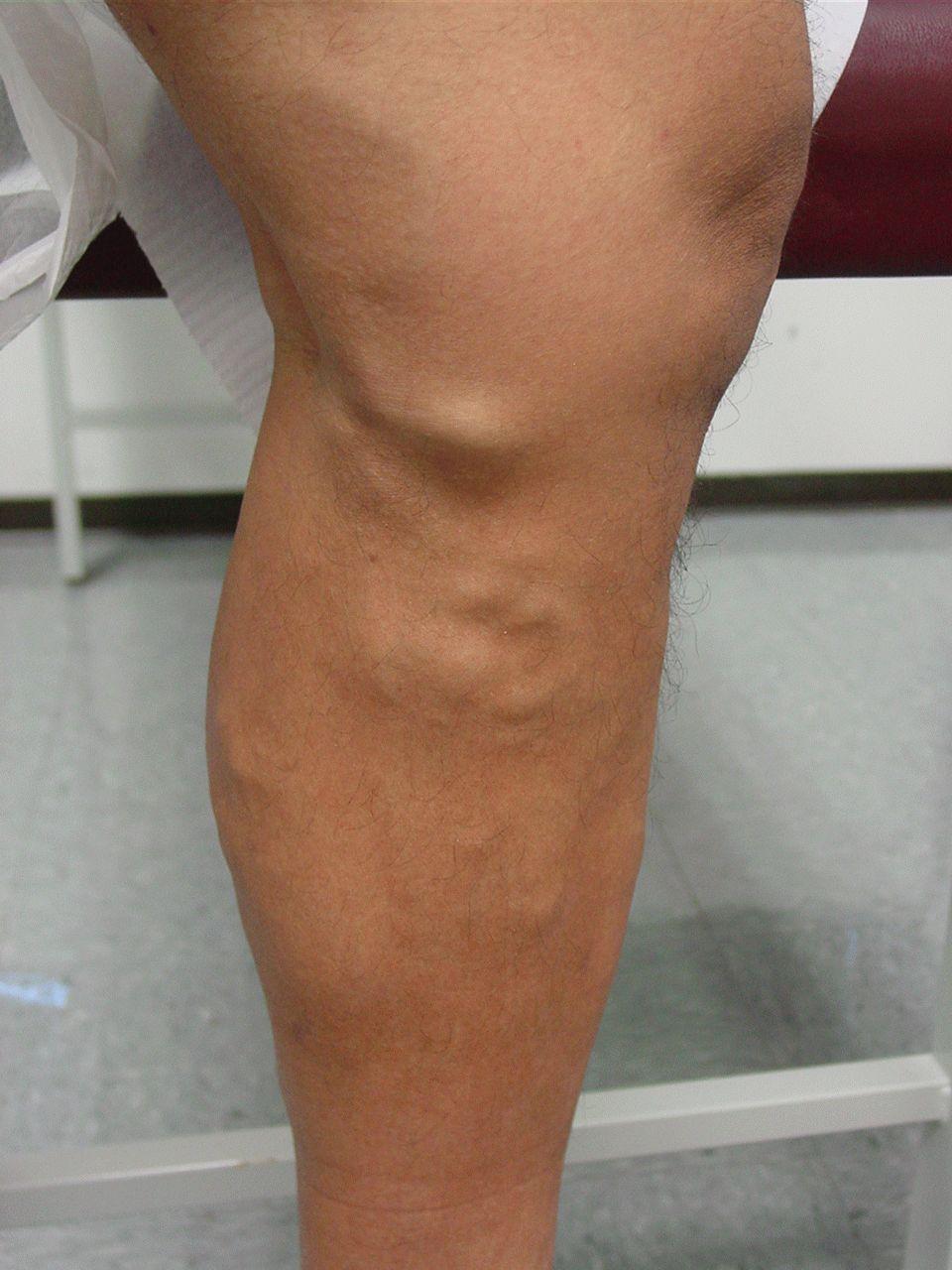 Почему возникает варикоз после операции Симптомы лечение профилактика
