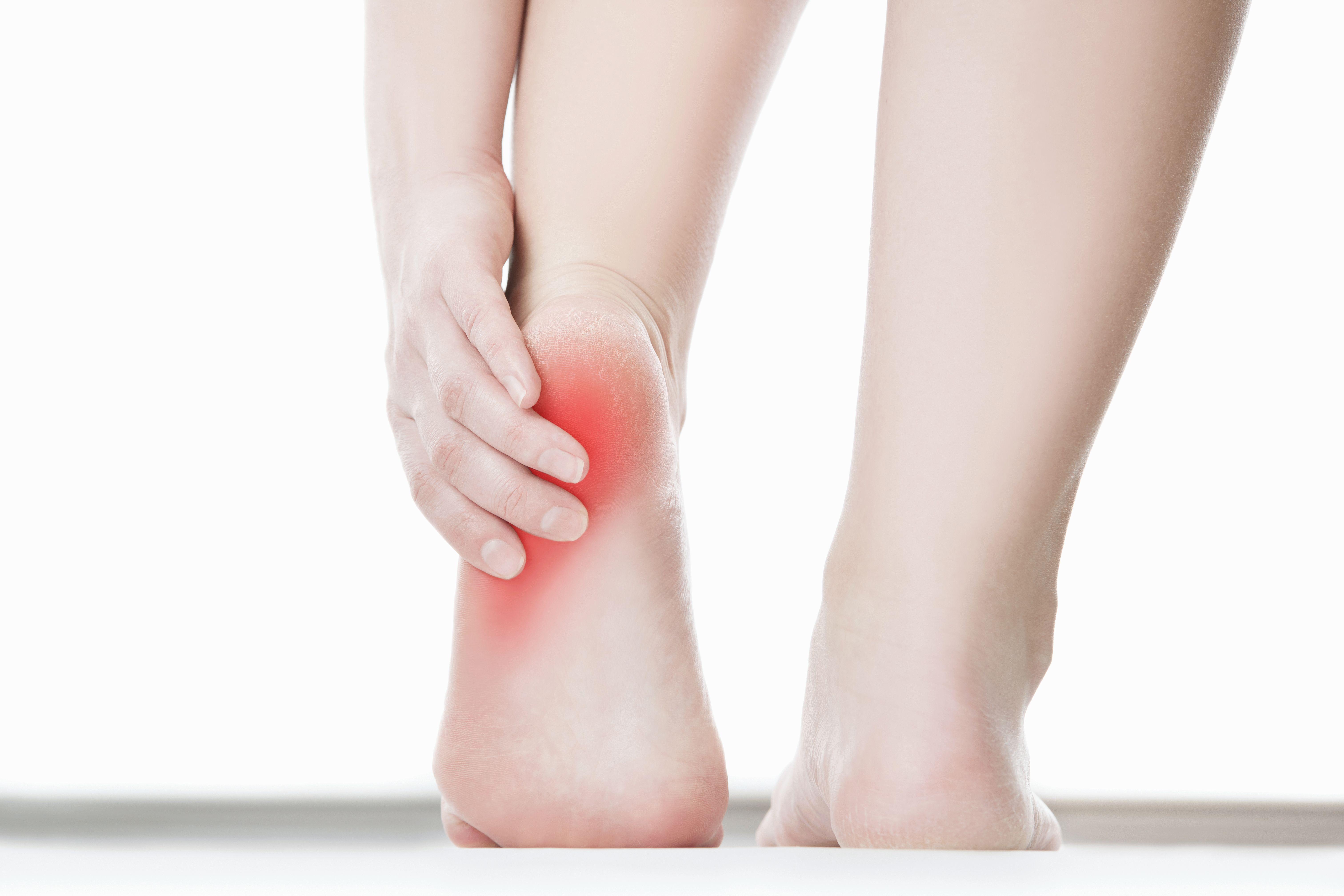 Как лечить варикоз на ногах на начальной стадии