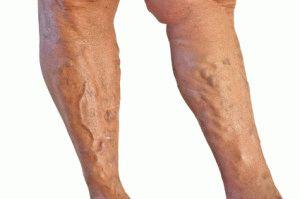 Варикоз голеней