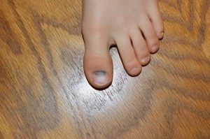 Почернел ноготь на пальце ноги