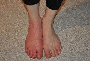 Эритромелалгия стопы