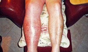 Тромбоз в ногах
