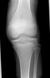 Перелом кости у колена