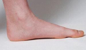 Боль при плоскостопии