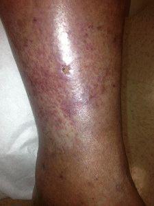 Тромбоз на ногах