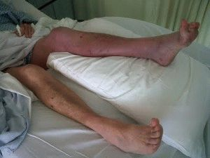 Тромбофлебит глубоких вен ног