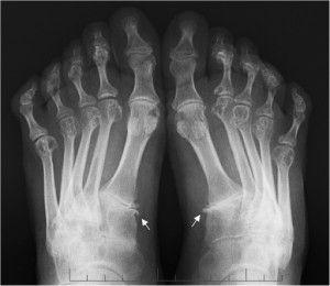 Артрит на рентгене