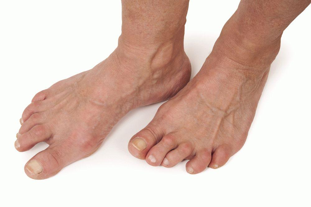 артрит артроз стопы
