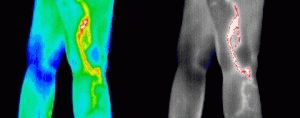 Хронический тромбофлебит