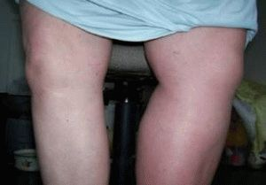 Тромбоз при беременности