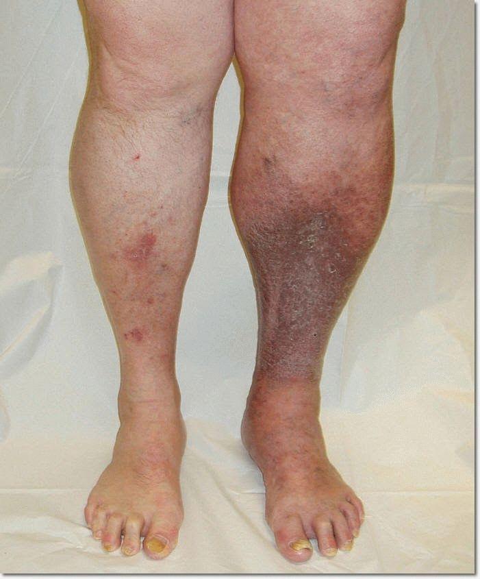 Здоров комплект подушка ботфорты и матрас от варикоза