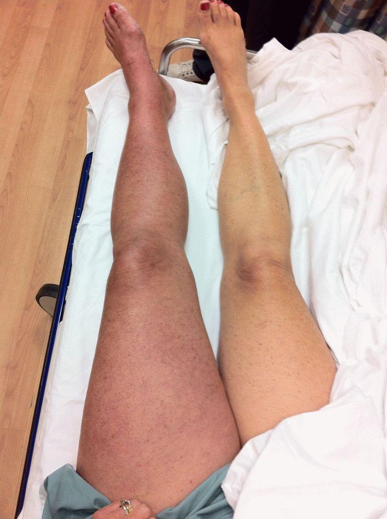 Болезнь вен на ногах симптомы фото