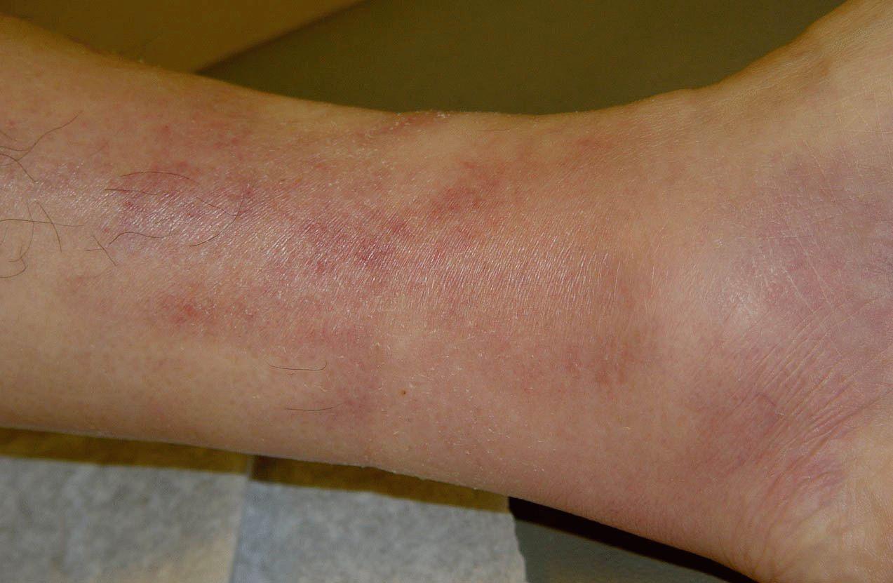Эффективное лечение варикоза на ногах народными средствами