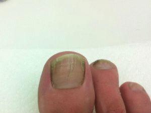 Трещинки на ногтях