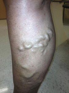 Тромбофлебит ног