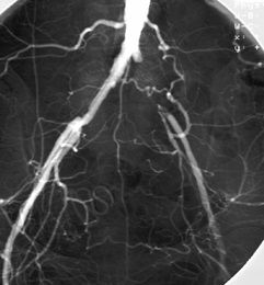 Тромбоз подвздошной артерии
