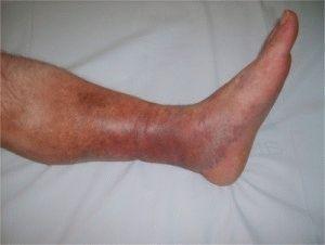 Тромбоз голени