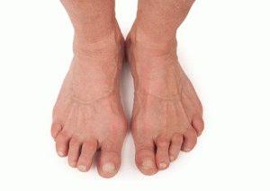 Как лечить ревматоидный артрит в домашних условиях