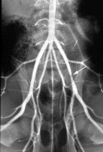 Тромбоз подвздошной зоны