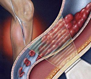 Тромбоз венозных сосудов