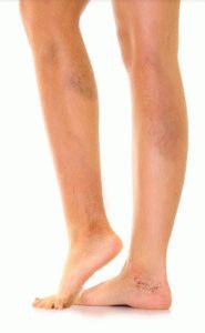 Возникновение звёздочек на ногах