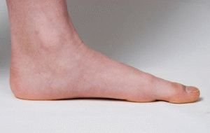 от чего деформируются пальцы на ногах