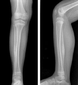 Диагностика костей