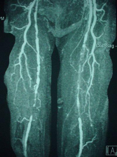 Стенозирующий атеросклероз артерий нижних конечностей: лечение и ...
