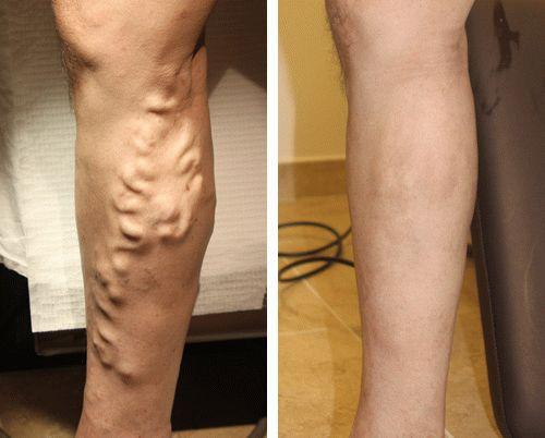Лечение тромбоз геморроидального узла лечение