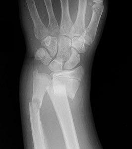 Травма лучевой кости