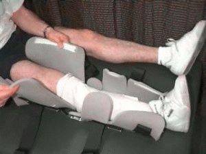 Реабилитация после перелома